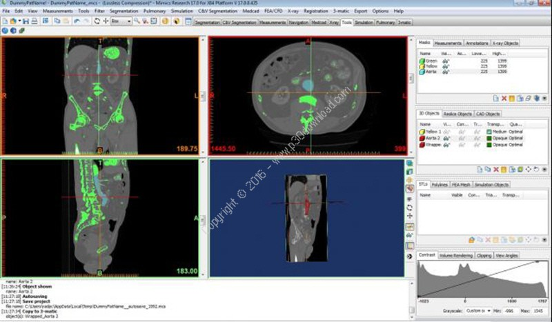 Materialise Mimics Innovation Suite Medical / Research v19.0 x64 Crack